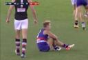 Mitch Wallis <br /> <a href='http://www.theroar.com.au/2016/07/25/watch-mitch-wallis-breaks-leg-hearts-teammates/'>WATCH: Mitch Wallis breaks his own leg and hearts of teammates</a>