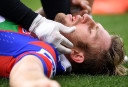 Brendan Elliott lies concussed <br /> <a href='http://www.theroar.com.au/2017/03/23/nrls-stance-concussion-hurts-head-let-alone-players/'>The NRL's stance on concussion does my head in</a>